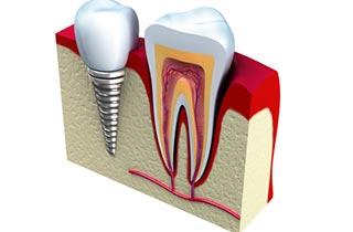 Zahnimplantat Haltbarkeit