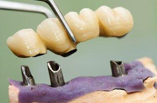 Zahnbrücke arten