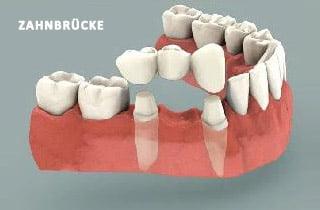 Zahnbrücke oder Implantat