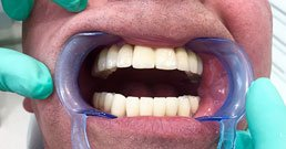 Implantate Zahn Erfahrungen