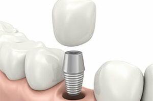 Implantat einsetzen