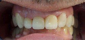 Zähne überkronen vorher und nachher