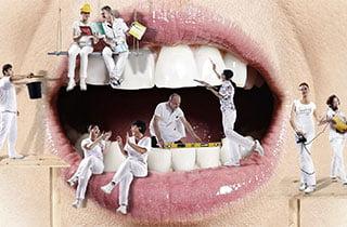 Zahnumformung