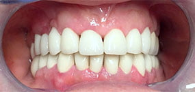 Zahnverfärbung_nach_Behandlung