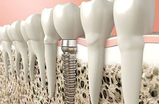 implantat-einsetzen