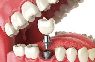 Probleme mit Zahnimplantat